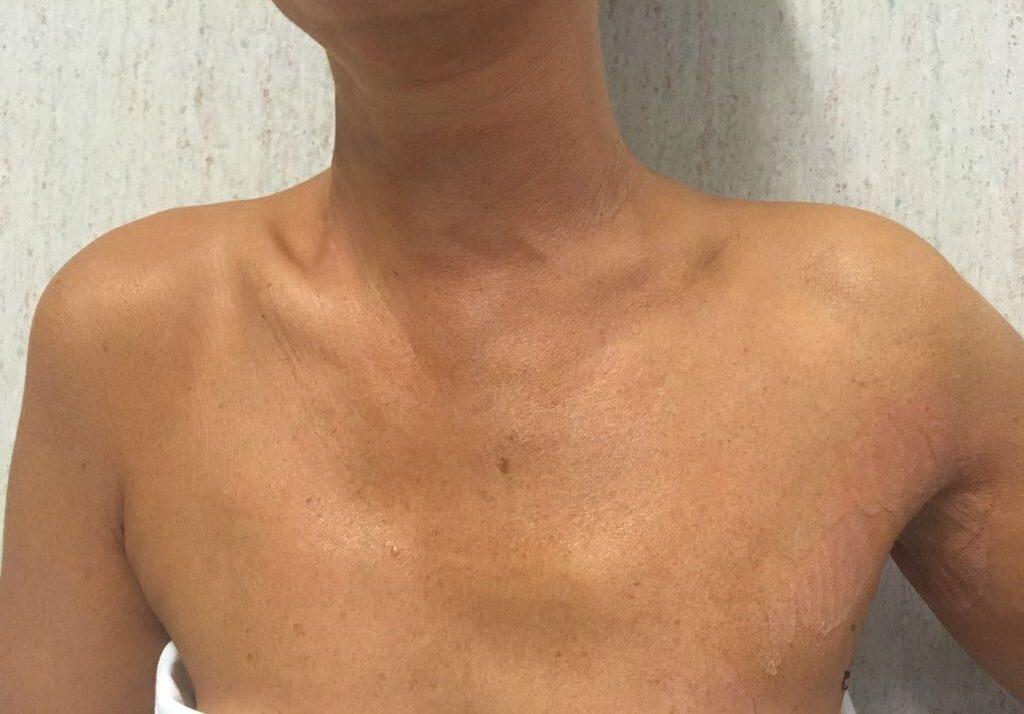 L'immagine mostra la completa assenza di cicatrici a livello del collo