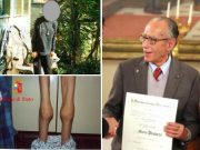 Mario Pianesi, le foto di alcune vittime malnutrite e con le stampelle