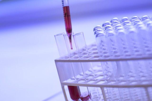 L'attenzione all'importanza cruciale degli screening di controllo non deve calare