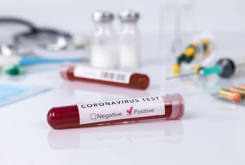 Coronavirus, un nuovo positivo e ricoveri stabili