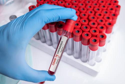 Coronavirus, non ci sono nuovi decessi