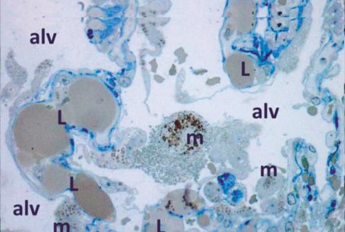Coronavirus, chi soffre di obesità è più esposto: l'ipotesi dell'UnivPm