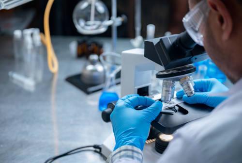 Università Politecnica delle Marche, studio sull'efficacia del trattamento con Tocilizumab per il Covid-19