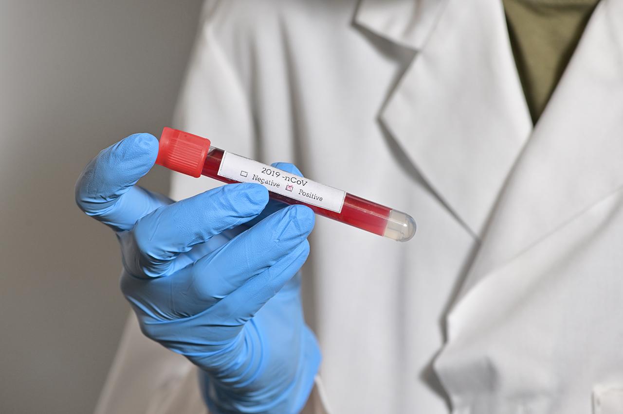 covid-19, contagi da coronavirus, tamponi, test sierologici, pandemia, persone positive, positivi,