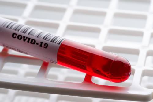 Coronavirus nelle Marche: 500 positivi, l'11% dei test