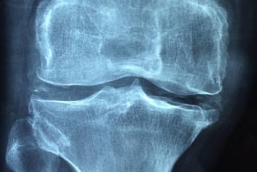 Osteoporosi, Palazzo delle Marche si tinge di giallo. Giacchetti: «Occorre creare percorsi diagnostico-terapeutici uniformi»